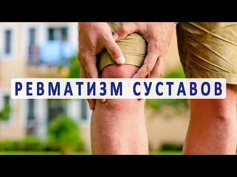 Что нужно знать о ревматизме суставов