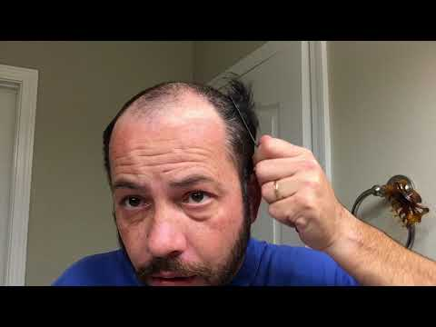 hair-replacement-hair-system-review-poly-system-take-off-and-clean-up