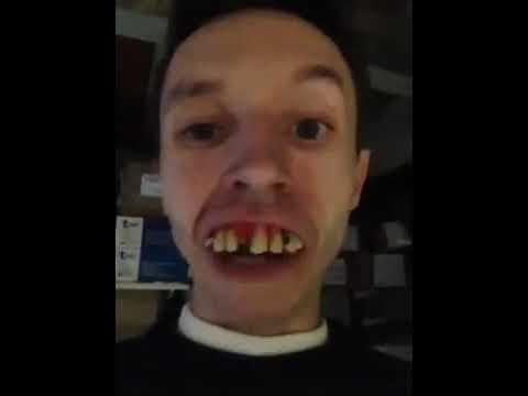 Os dentes mais podres e feios do mundo youtube os dentes mais podres e feios do mundo altavistaventures Image collections