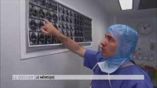 traitement arthroscopique d'une déchirure du ménisque