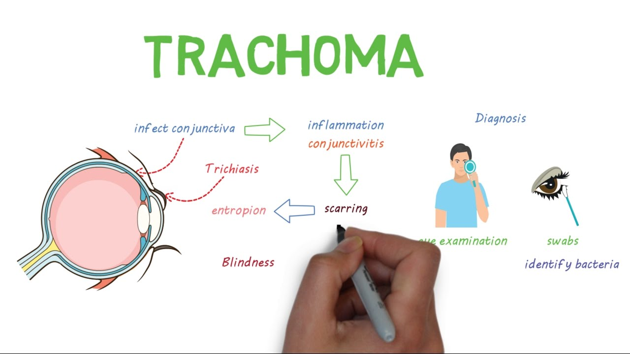 Image result for TRACHOMA