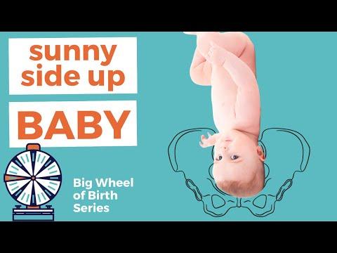 Cephalic Position Understanding Kids Presentation at Birth