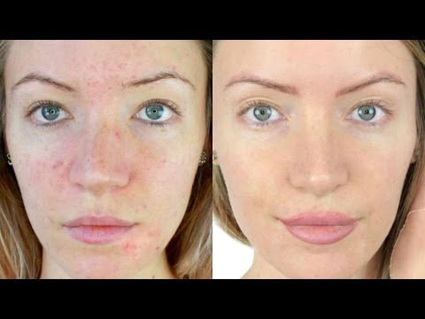 Acne Skincare Routine   STEPHANIE LANGE