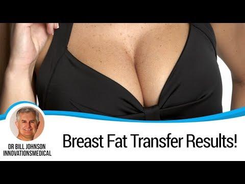 Breast Fat Transfer Results!!!