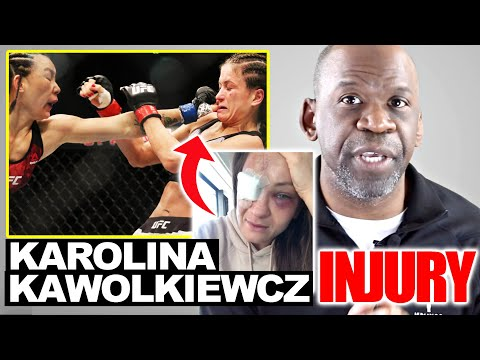 KAROLINA KOWALKIEWICZ Eye Injury: UFC Eye Injury At UFC Fight Night 168 Explained By Dr Chris Raynor
