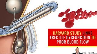 💋 Harvard Study Links Erectile Dysfunction to Poor Blood Flow