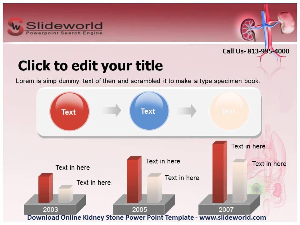 Download online kidney stone powerpoint template youtube download online kidney stone powerpoint template toneelgroepblik Gallery