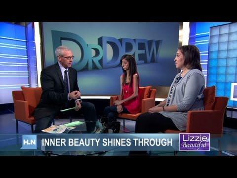 CNN: 63pound woman, Lizzie Velasquez can't gain weight