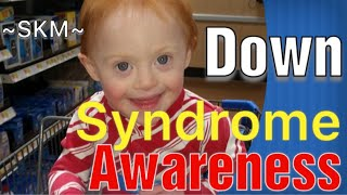 2 Facts About Down Syndrome | Down Syndrome Awareness Month