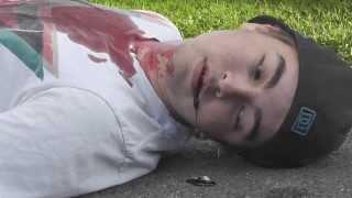 Kille blir skjuten av ilsken mopedist