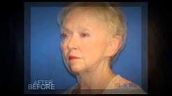 Facelift Ft Myers, Face Lift Fort Myers - Dr Audrey Farahmand