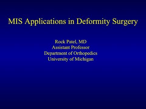 MIS Applications in Deformity Surgery by Rock Patel, M.D.