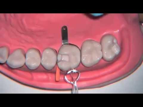 Posterior Dental Matrix: MetaFix Application Demo (EN)