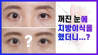 꺼진 눈 눈두덩이지방이식 실제 수술 사례 소개 | 눈두…