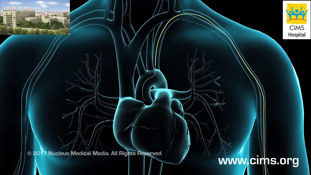 Coronary Artery Angiography Cardiac Catheterization Cims Hospital