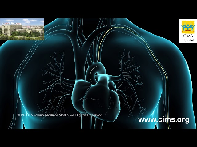 Coronary Artery Angiography Cardiac Catheterization - CIMS Hospital
