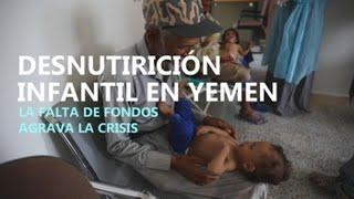 Los programas para combatir la desnutrición infantil en Yemen sufren recortes en sus fondos