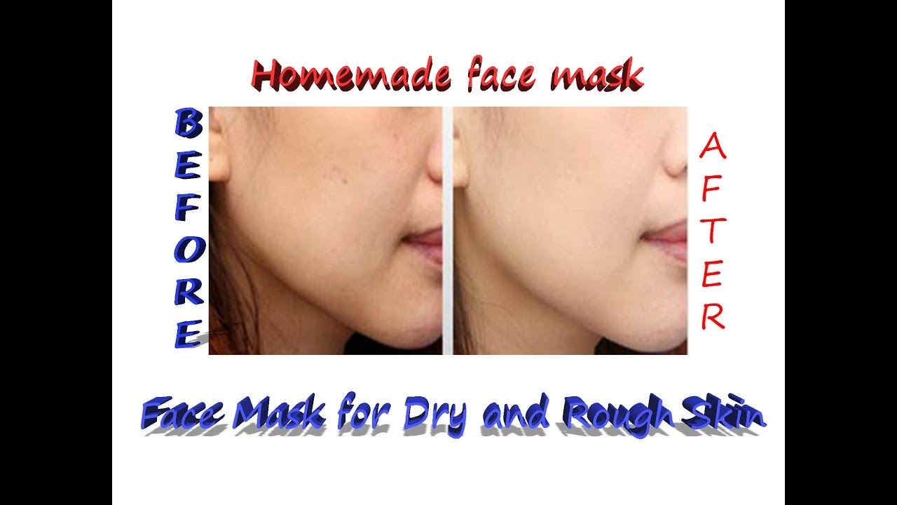 Homemade Face Mask For Dry And Rough Skin