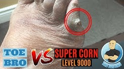 PAINFUL FOOT CORN REMOVAL & TIPS TO STOP FOOT CORNS!!!