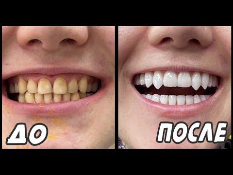 Виниры. Зубы до и после установки виниров. Моя история