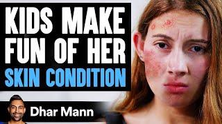 Kids MAKE FUN Of Girl's SKIN CONDITION, What Happens Is Shocking | Dhar Mann