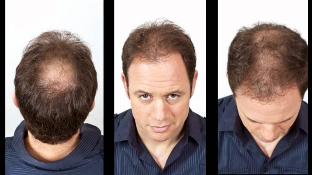 Kyran Bracken Viviscal hair loss concealer fibres interview ...