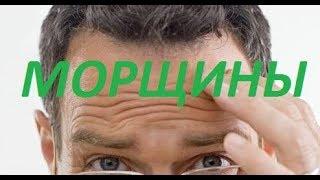 видео Морщины вокруг глаз и на лбу у мужчин