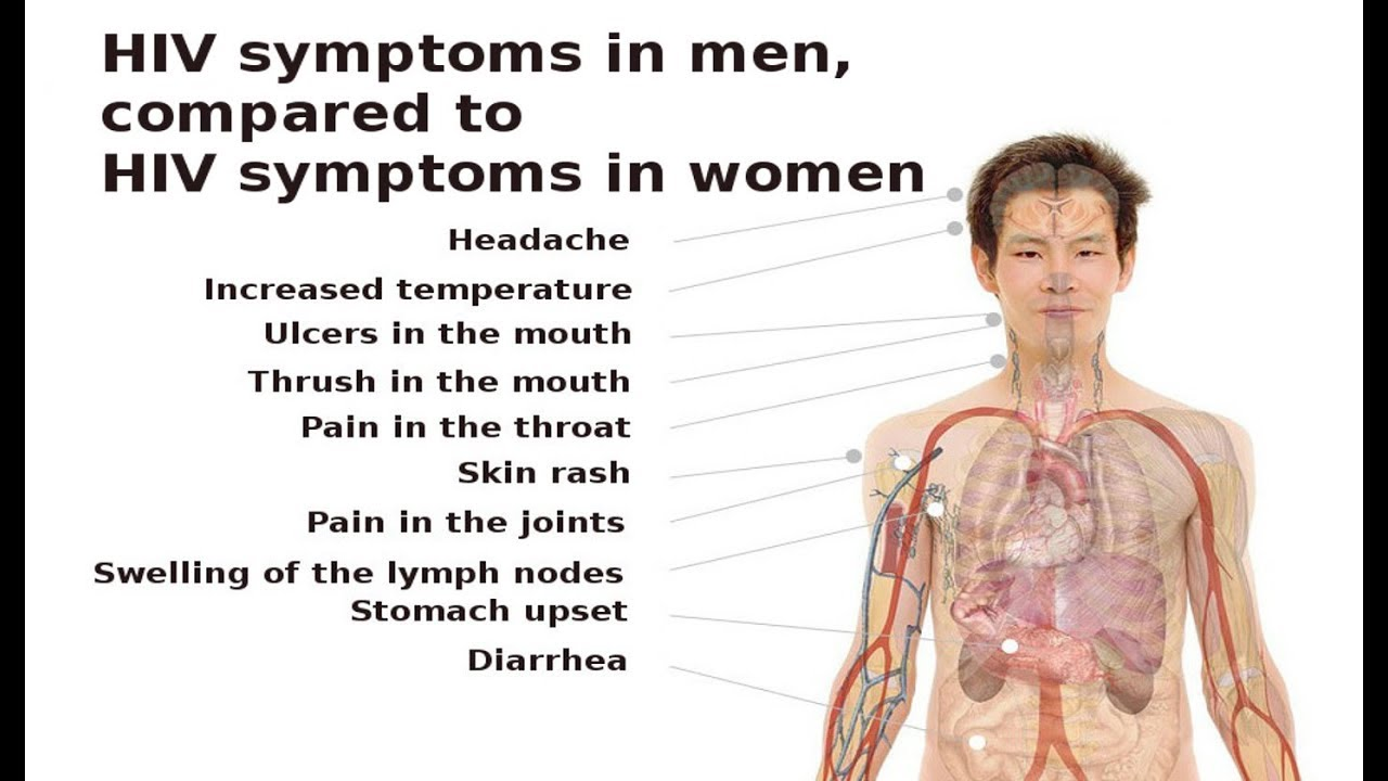 HIV symptoms in men