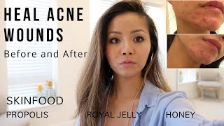 Healing Acne Wounds Before and After | Propolis, Royal Jelly and Honey
