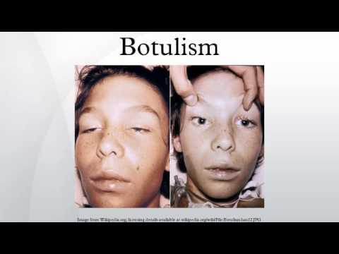 Botulism