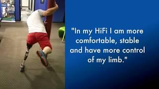 HiFi Above Knee Prosthetic Socket - Kick Your Bucket