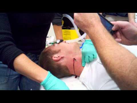 Mise en place d 39 un cath ter funnydog tv - Prise de sang sur chambre implantable ...