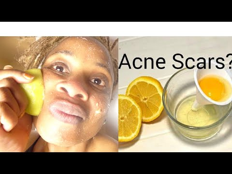 GOLLY GOSH THIS WORKS!! PUT LEMON WITH SEA SALT APPLY ON YOUR SKIN AND WATCH WHAT HAPPENS