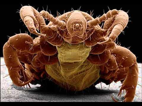 What Do Head Lice Look Like