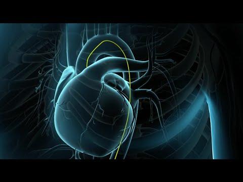angioplastía-coronaria