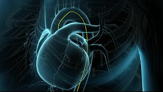Dominante arteria coronaria