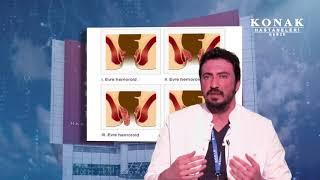 Doç. Dr. Barış Bayraktar - Hemoroid Nedir? Belirtileri ve Tedavi Yöntemleri Nelerdir?