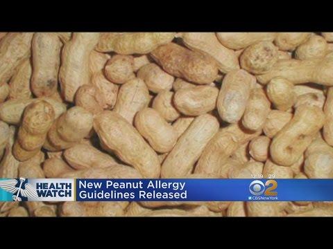 New Peanut Allergy Guidelines