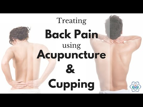 Treating Back Pain using Acupuncture & Cupping