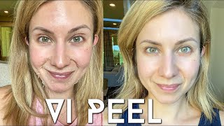 Vi PEEL done aт Home | Step by Step Process + Before and Afters