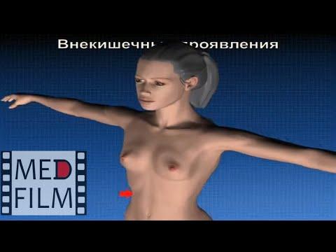 Внекишечные проявления заболеваний кишечника (ВЗК) © Extraintestinal Manifestations Of Bowel Disease