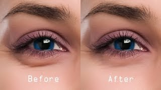 Beauty Tips - Easy Steps to Cure Dark Circles - Part 2 - Dr.Divya