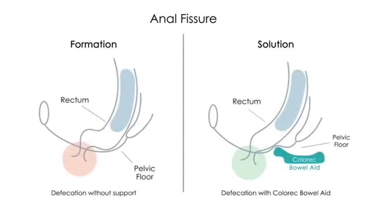 How do you treat an anal fissure