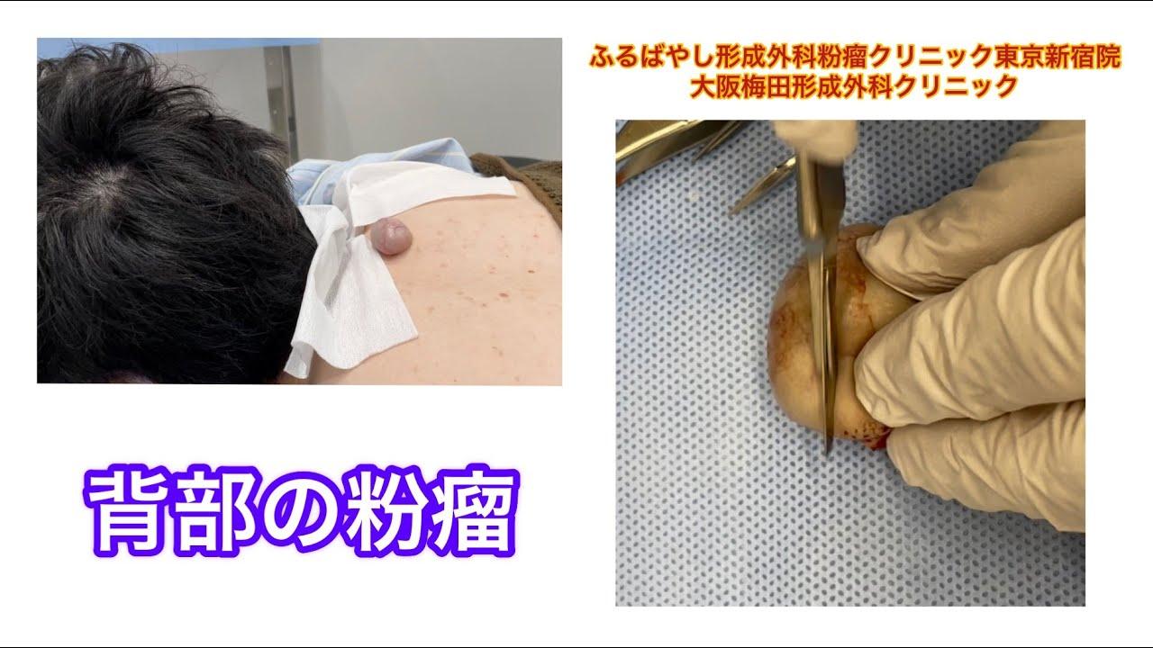 背部の切らざるおえない粉瘤 ブログでも粉瘤について詳しく解説してます。ふるばやし形成外科粉瘤クリニック東京新宿院 大阪梅田形成外科クリニック