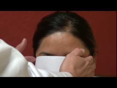 women-hairline-surgery-result-before-after-hair-transplant-restoration-dr.-diep-www.mhtaclinic.com