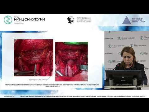 Мультидисциплинарный подход в лечении опухолей щитовидной железы
