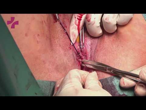 Регулируемый позадилонный субуретральный слинг (Adjustable retropubic tape for SUI)