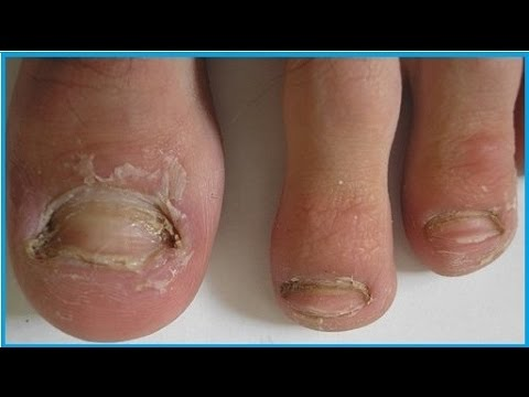 Fingernail fungus treatment. How to cure foot fungus? Nail fungal infection