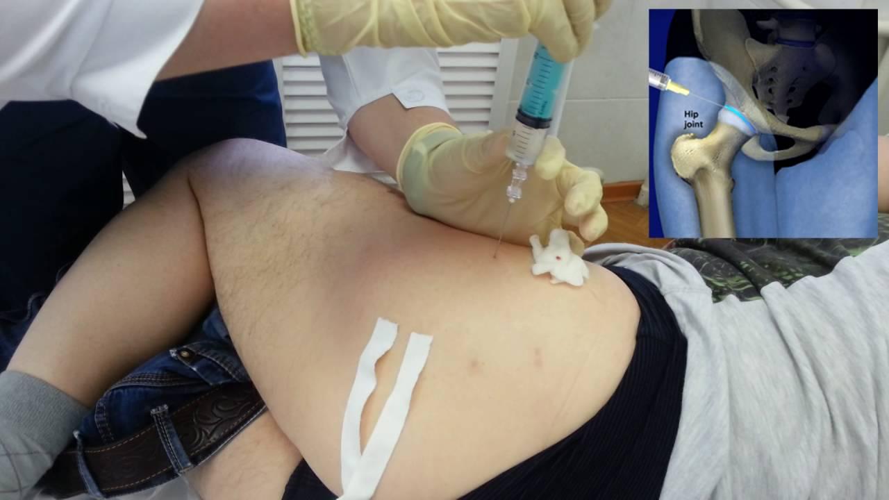 Блокада тазобедренного сустава. Гиалуроновая кислота. Hip Joint ...