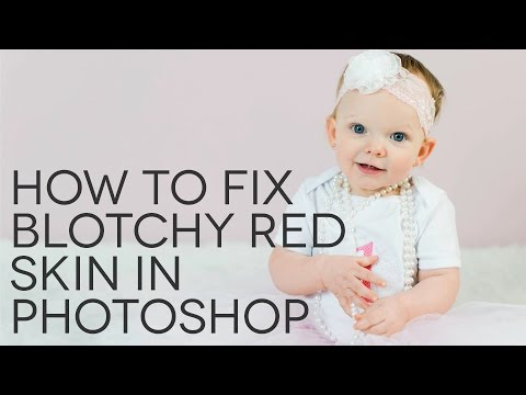 How To Fix Blotchy Red Skin In Photoshop